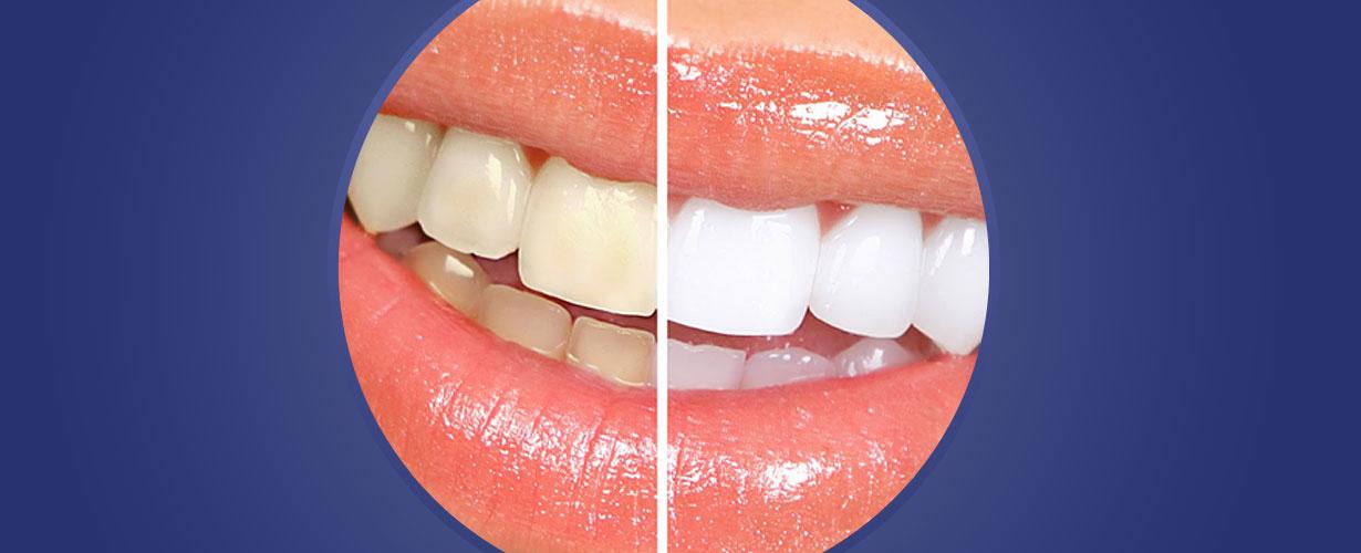 … pero es posible eliminar las manchas protegiendo nuestra dentadura ...